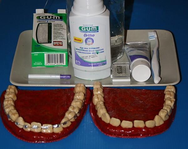 apparecchio ortodontico